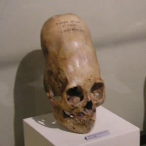 50-Деформированные черепа